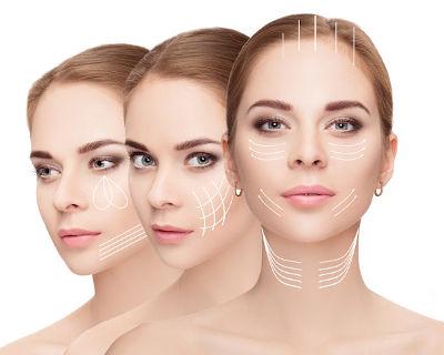 Carboxytherapie im Gesicht vor und nach dem Abnehmen